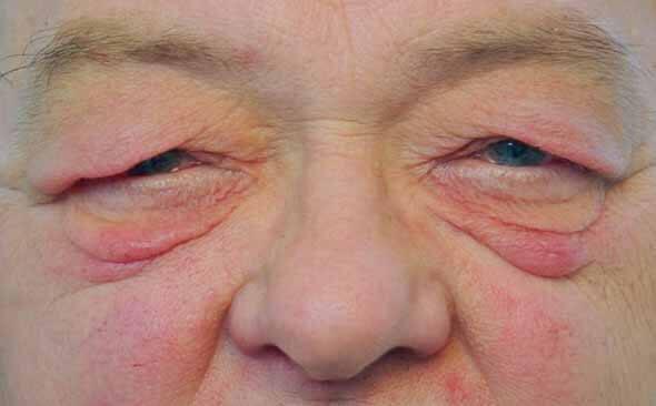 LidMed Lidchirurgie Lidprobleme im Alter