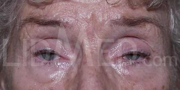 LidMed Ptosis