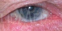 Dis- Trichiasis Unterlid