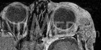 Neurofibrome MRT