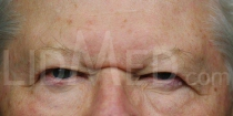 Ptosis Stirn u. Brauen