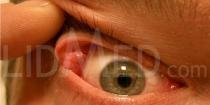 Tränendrüsenvorfall