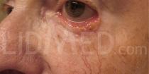 Dermatose u. Ektropium