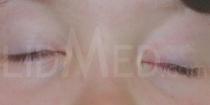 Oculomotoriusparese