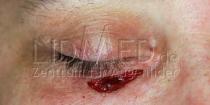 LidMed-Verletzungsfolgen-04