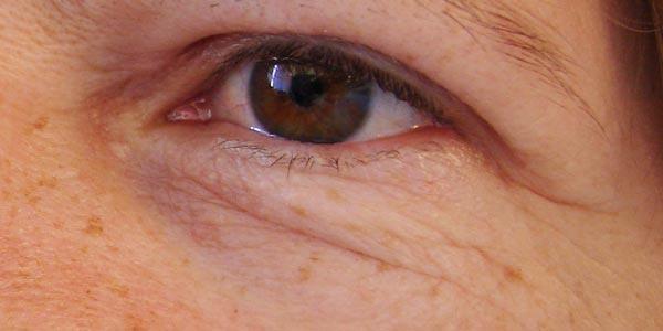 Lasertherapie - Hautfalten im Unterlidbereich