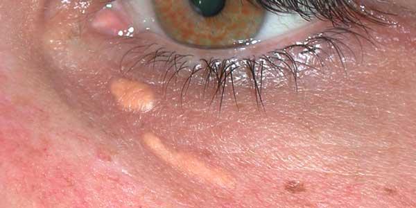 Lasertherapie - Xanthelasmen im Unterlidbereich