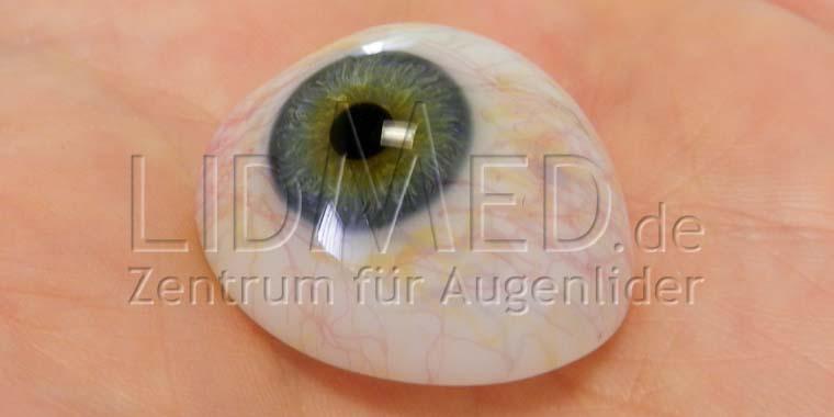 LidMed Kunstaugenchirurgie - Augenprothesen