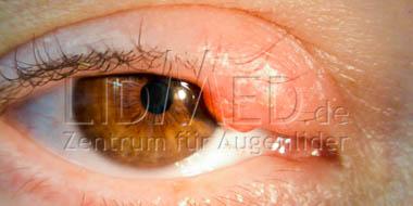 Tumor am Augenlid
