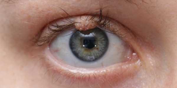 Lasertherapie - Augenlidwarzen